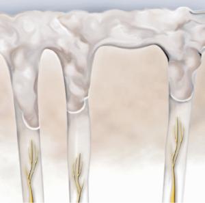 Nite White ACP2 - wybielanie zębów warszawa