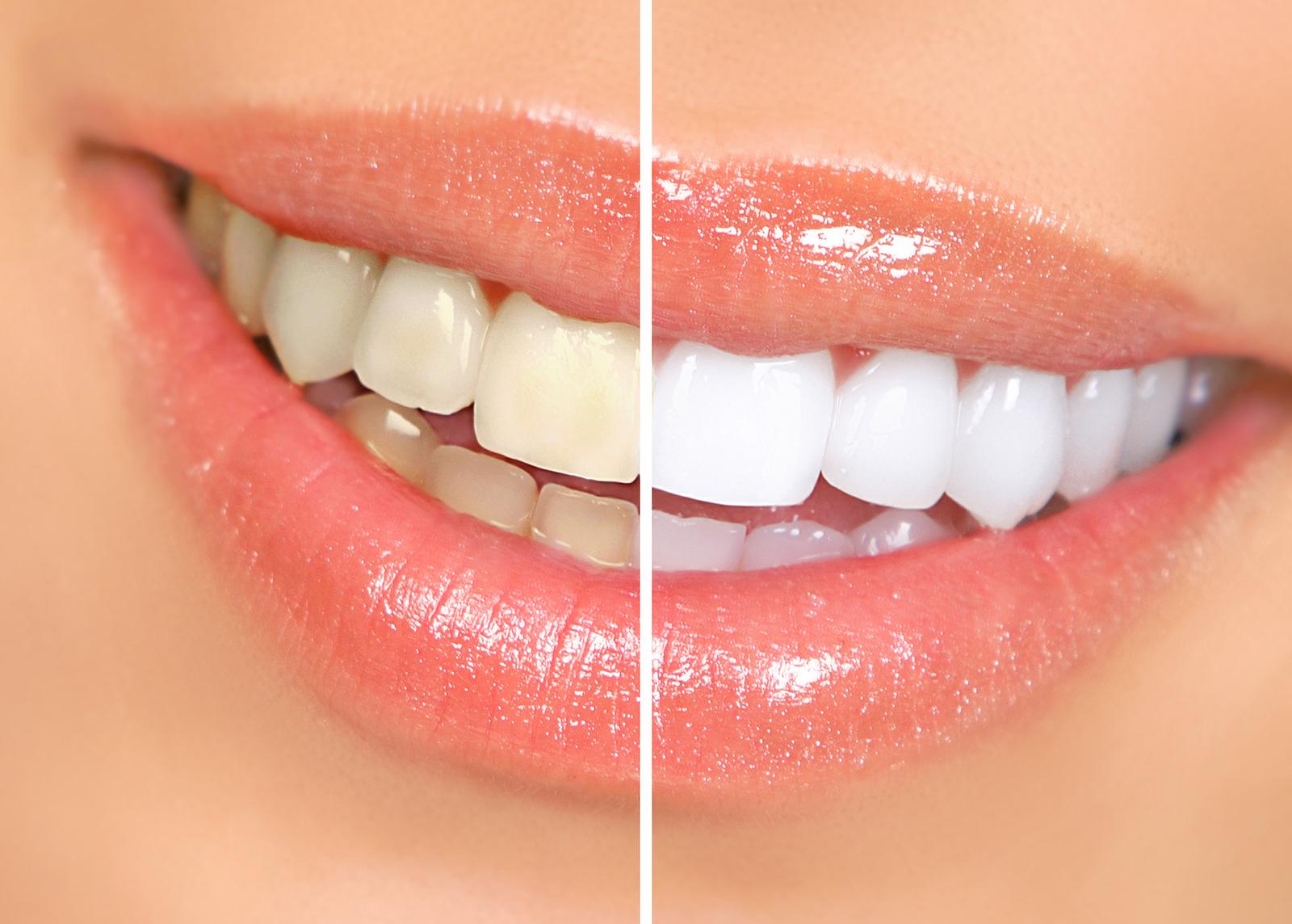 stomatologia_estetyczna_wybielanie_lista