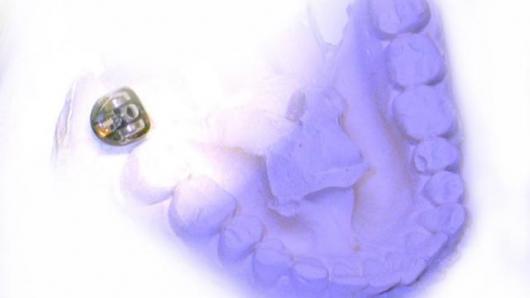 implanty dentystyczne warszawa praga grochowska