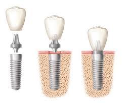 implanty dentystyczne stomatologiczne warszawa