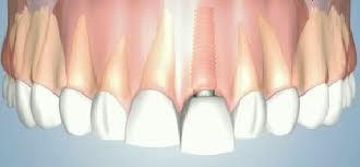 implanty cyrkonowe