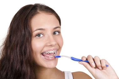 Aparat ortodontyczny i higiena.