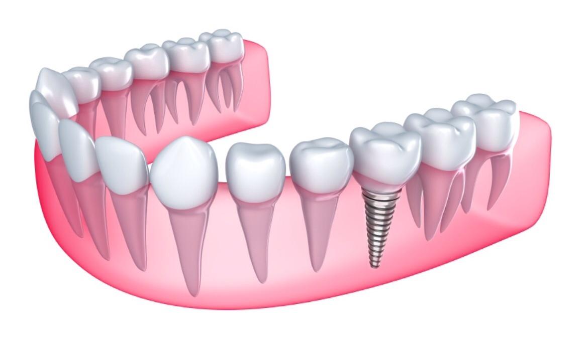 Implanty natychmiastowe stabilne