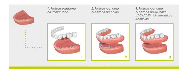straumann-proteza